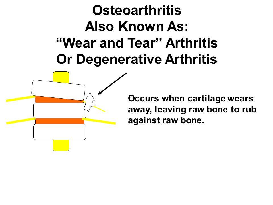 "Osteoarthritis Also Known As: ""Wear and Tear"" Arthritis Or Degenerative Arthritis Occurs when cartilage wears away, leaving raw bone to rub against ra"