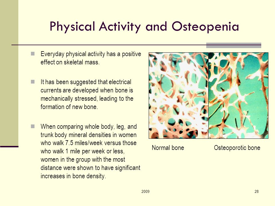 200928 Physical Activity and Osteopenia Everyday physical activity has a positive effect on skeletal mass.