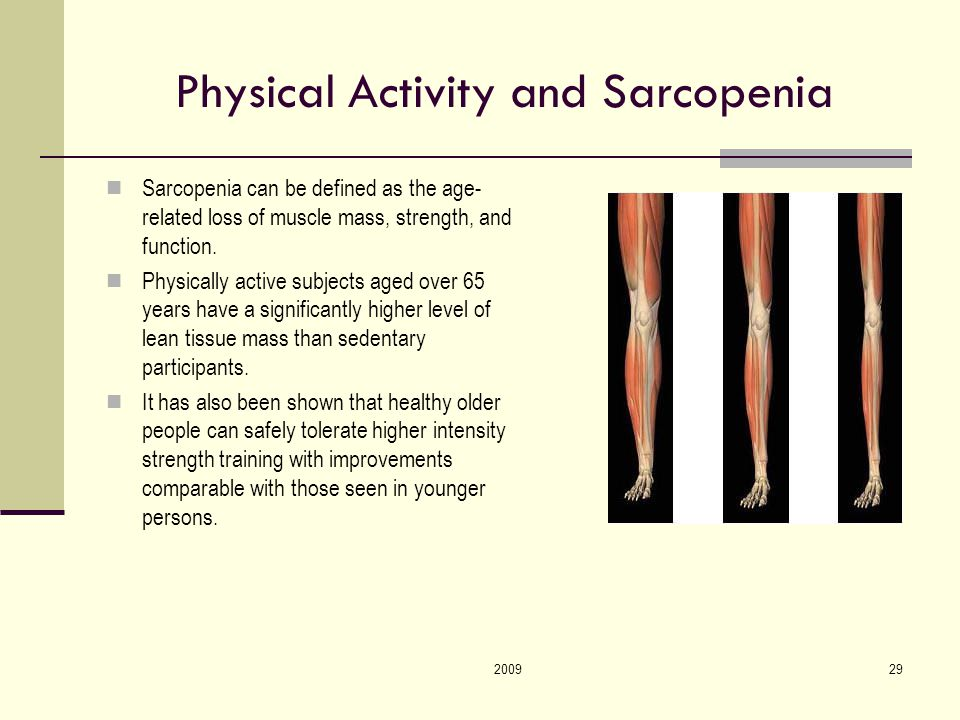 200929 Physical Activity and Sarcopenia Sarcopenia can be defined as the age- related loss of muscle mass, strength, and function.