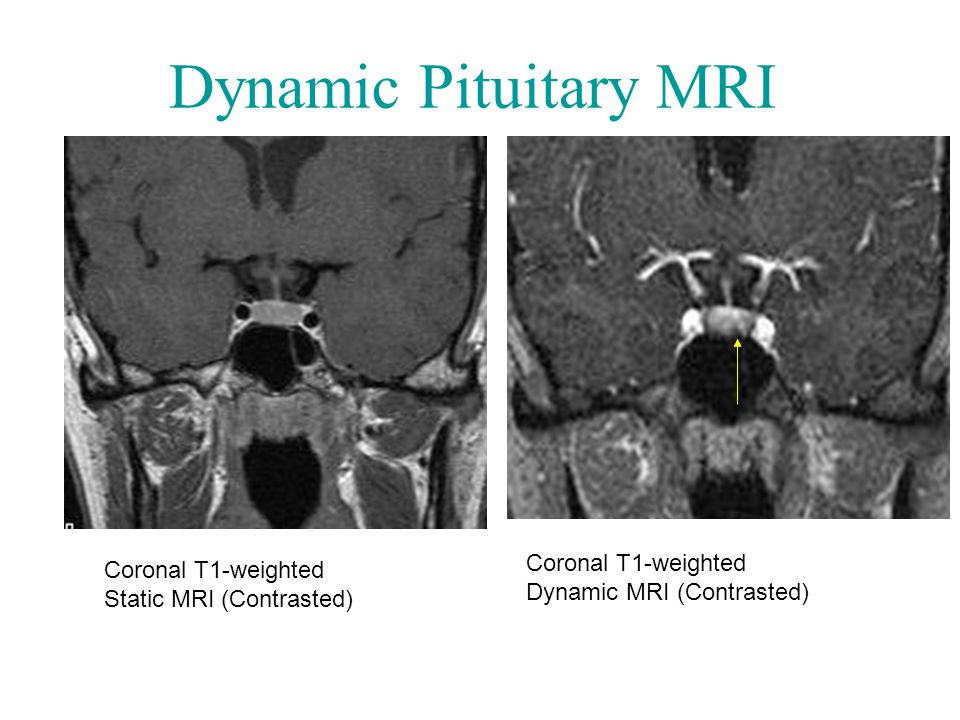 Dynamic Pituitary MRI Coronal T1-weighted Static MRI (Contrasted) Coronal T1-weighted Dynamic MRI (Contrasted)