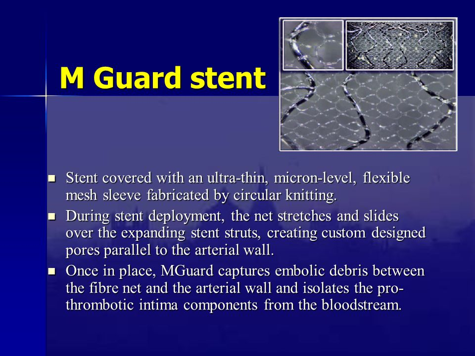 M Guard stent Stent covered with an ultra-thin, micron-level, flexible mesh sleeve fabricated by circular knitting.