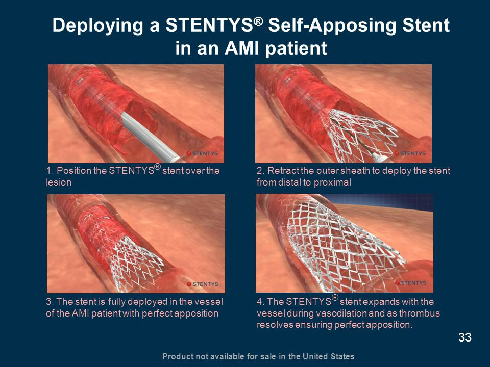 1. Position the STENTYS ® stent over the lesion 2. Retract the outer sheath to deploy the stent from distal to proximal 3. The stent is fully deployed