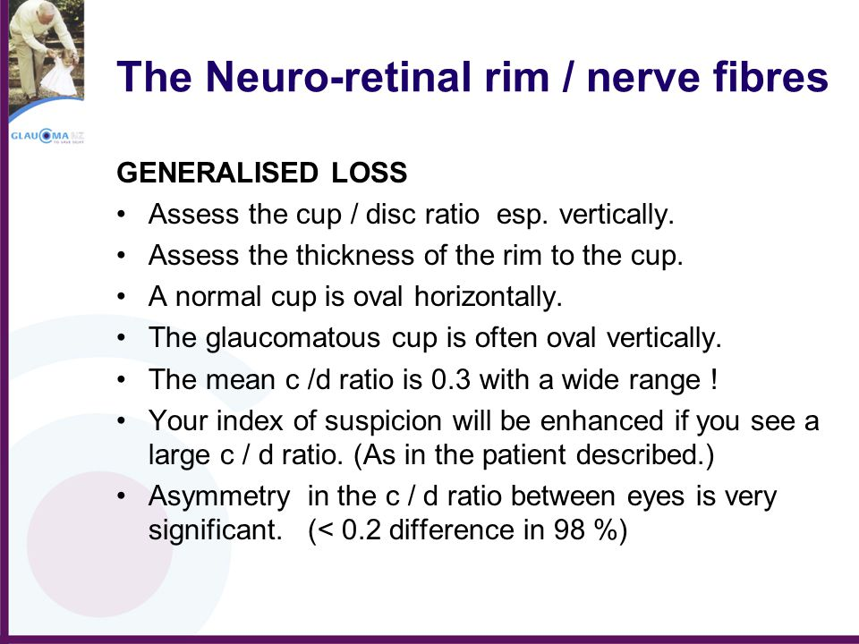 The Neuro-retinal rim / nerve fibres GENERALISED LOSS Assess the cup / disc ratio esp. vertically. Assess the thickness of the rim to the cup. A norma