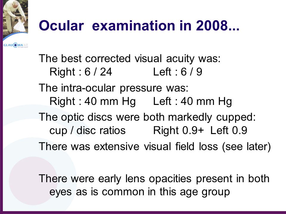 Ocular examination in 2008... The best corrected visual acuity was: Right : 6 / 24Left : 6 / 9 The intra-ocular pressure was: Right : 40 mm HgLeft : 4