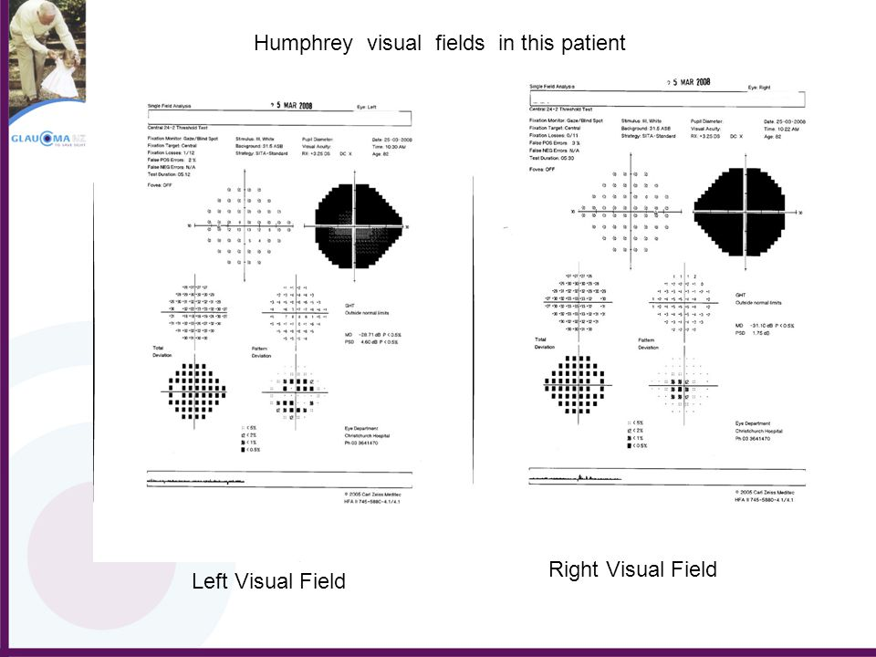 Left Visual Field Right Visual Field Humphrey visual fields in this patient
