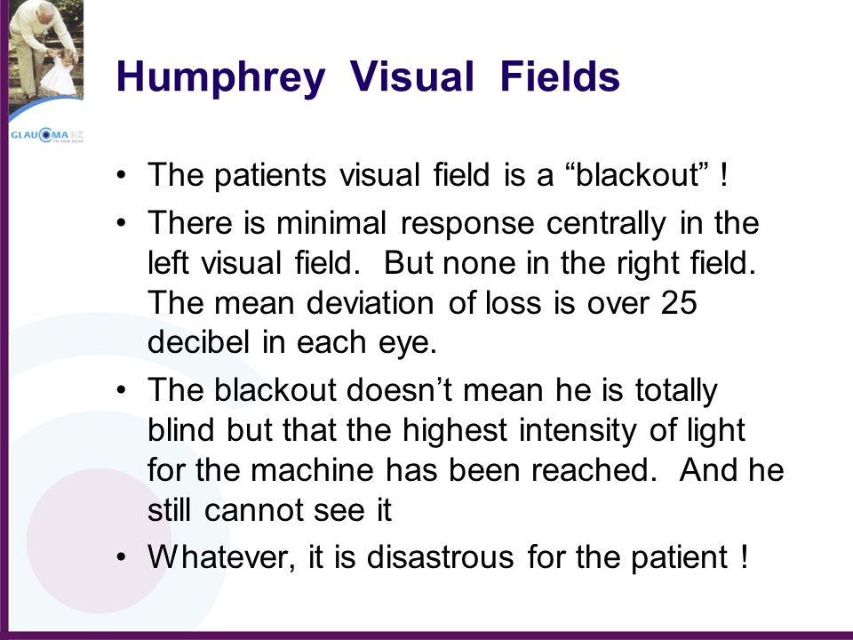 """Humphrey Visual Fields The patients visual field is a """"blackout"""" ! There is minimal response centrally in the left visual field. But none in the right"""