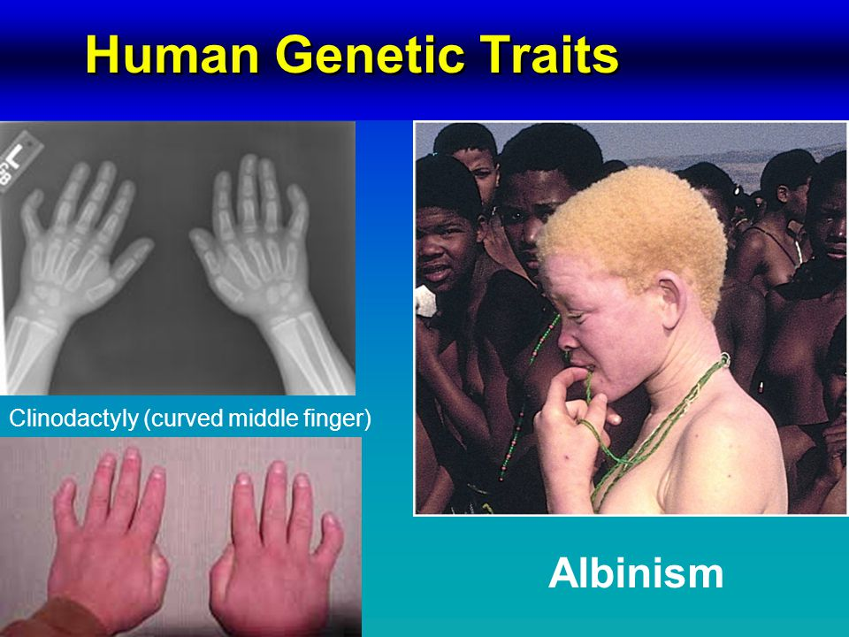 Human Genetic Traits Clinodactyly (curved middle finger) Albinism
