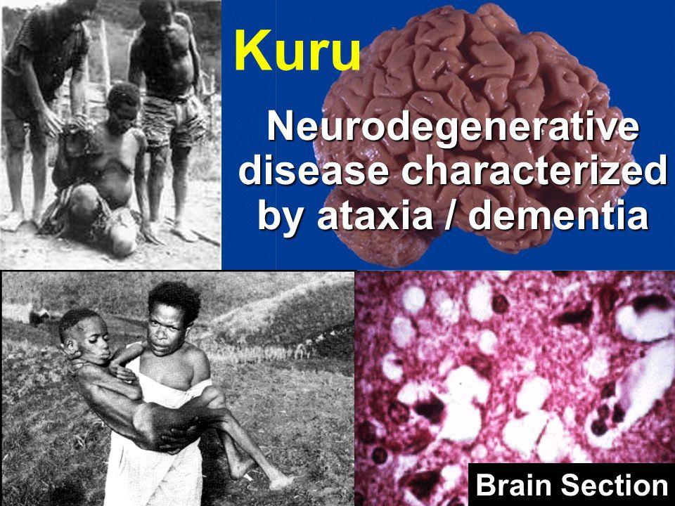 Kuru Neurodegenerative disease characterized by ataxia / dementia Brain Section