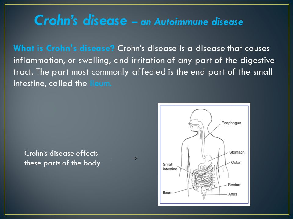 Crohn's disease – an Autoimmune disease What is Crohn's disease? Crohn's disease is a disease that causes inflammation, or swelling, and irritation of