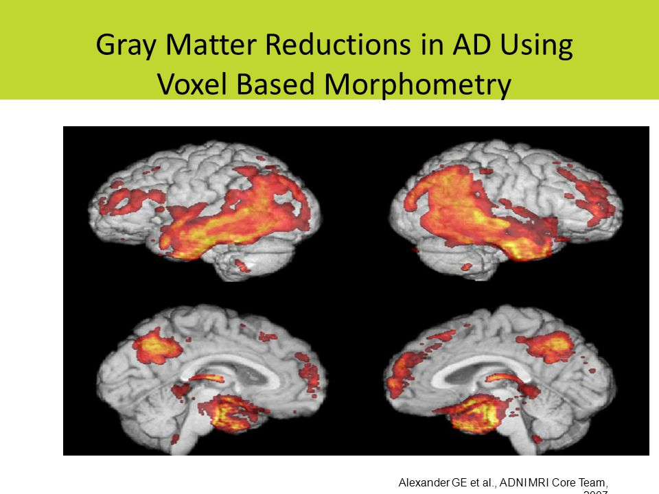 Gray Matter Reductions in AD Using Voxel Based Morphometry Alexander GE et al., ADNI MRI Core Team, 2007