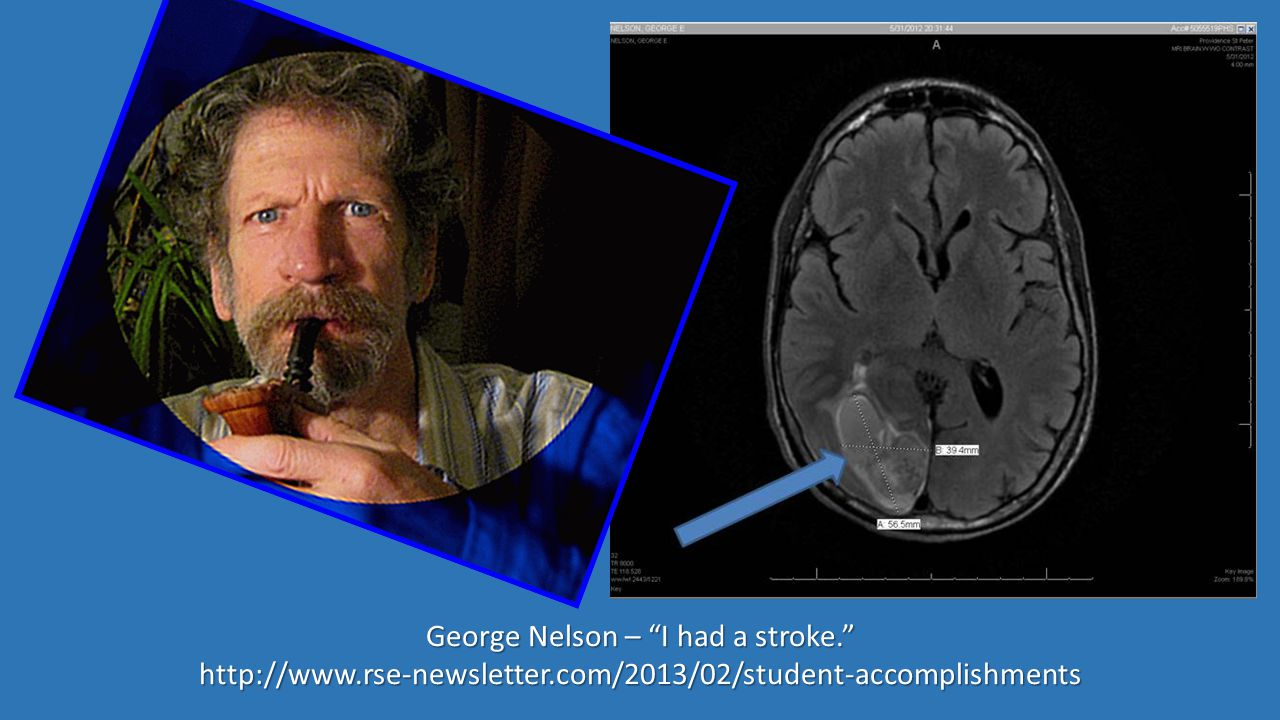 George Nelson – I had a stroke. http://www.rse-newsletter.com/2013/02/student-accomplishments