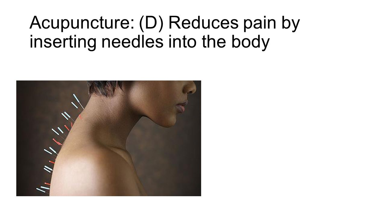 Acupuncture: (D) Reduces pain by inserting needles into the body