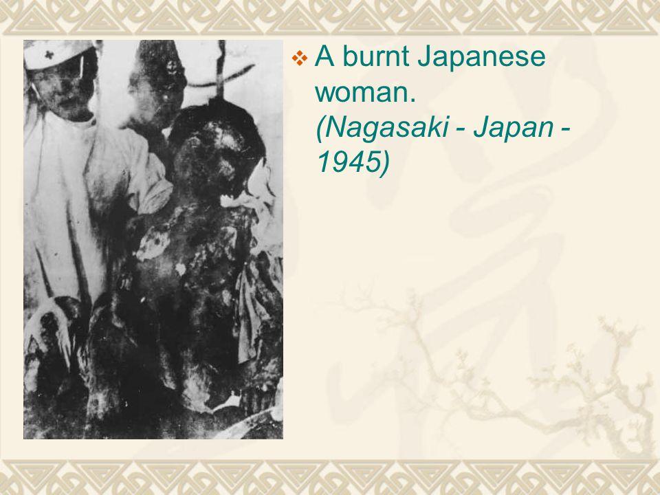  A burnt Japanese woman. (Nagasaki - Japan - 1945)