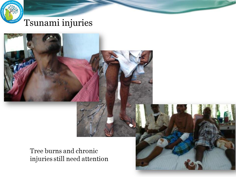 Tsunami injuries Tree burns and chronic injuries still need attention