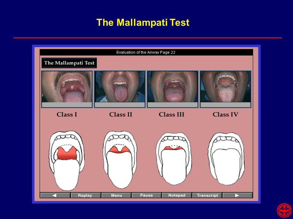 The Mallampati Test