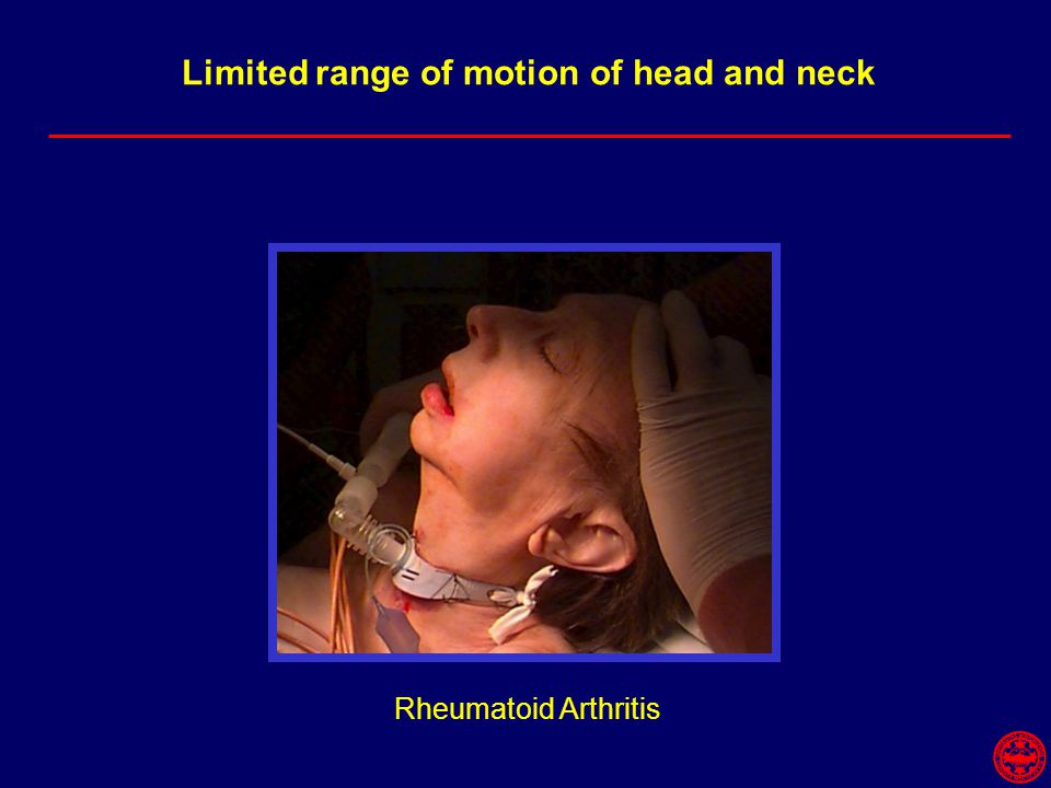 Limited range of motion of head and neck Rheumatoid Arthritis