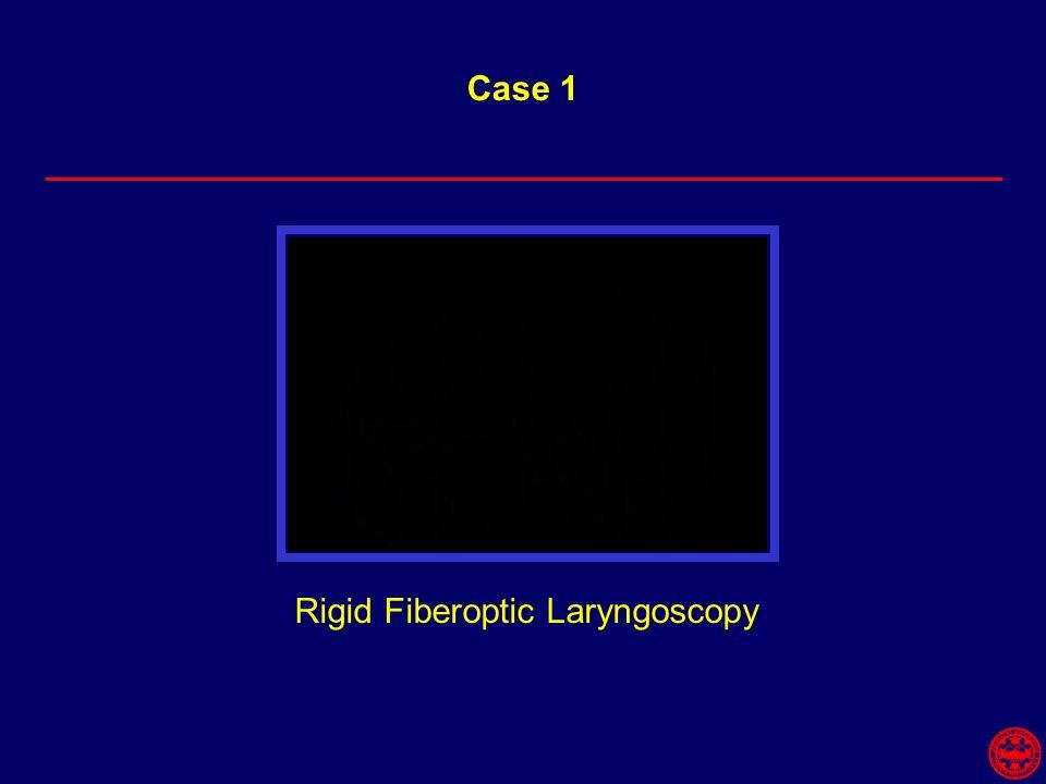 Rigid Fiberoptic Laryngoscopy Case 1