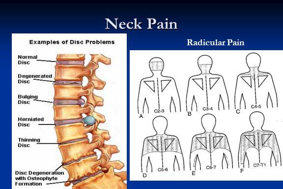 Neck Pain Radicular Pain