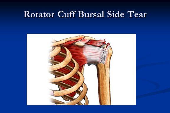 Rotator Cuff Bursal Side Tear