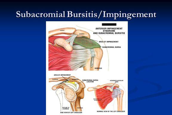 Subacromial Bursitis/Impingement