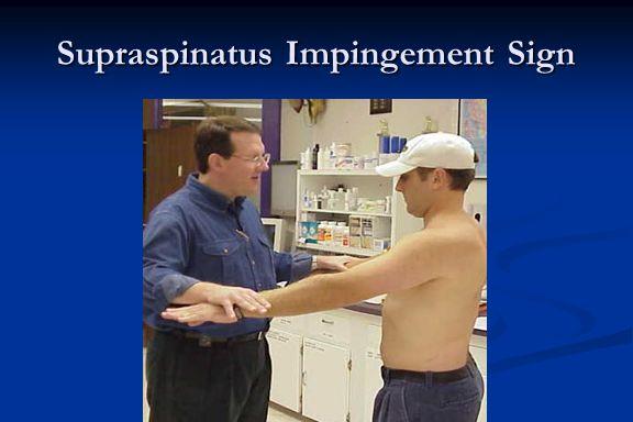 Supraspinatus Impingement Sign