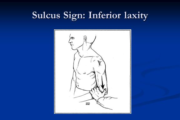 Sulcus Sign: Inferior laxity