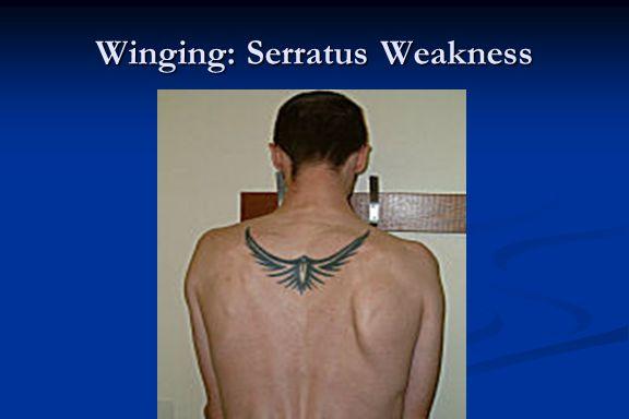 Winging: Serratus Weakness