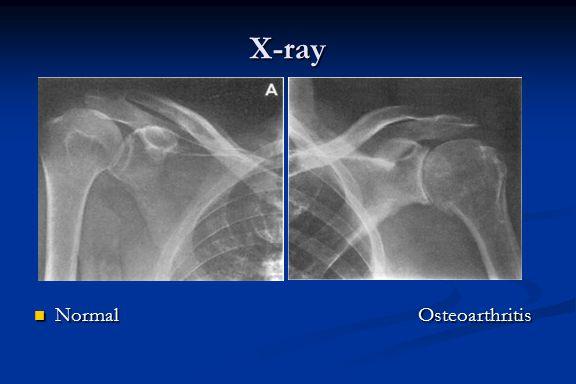 X-ray NormalOsteoarthritis