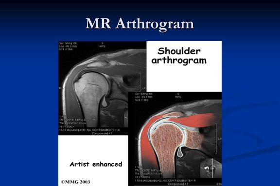 MR Arthrogram