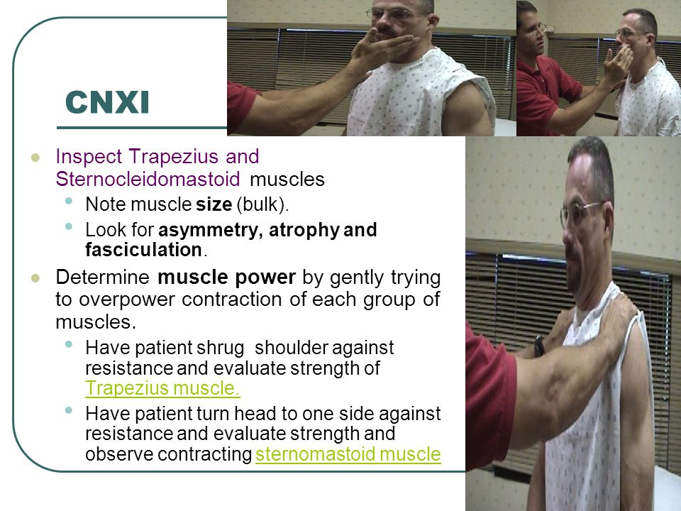 CNXI Inspect Trapezius and Sternocleidomastoid muscles Note muscle size (bulk). Look for asymmetry, atrophy and fasciculation. Determine muscle power