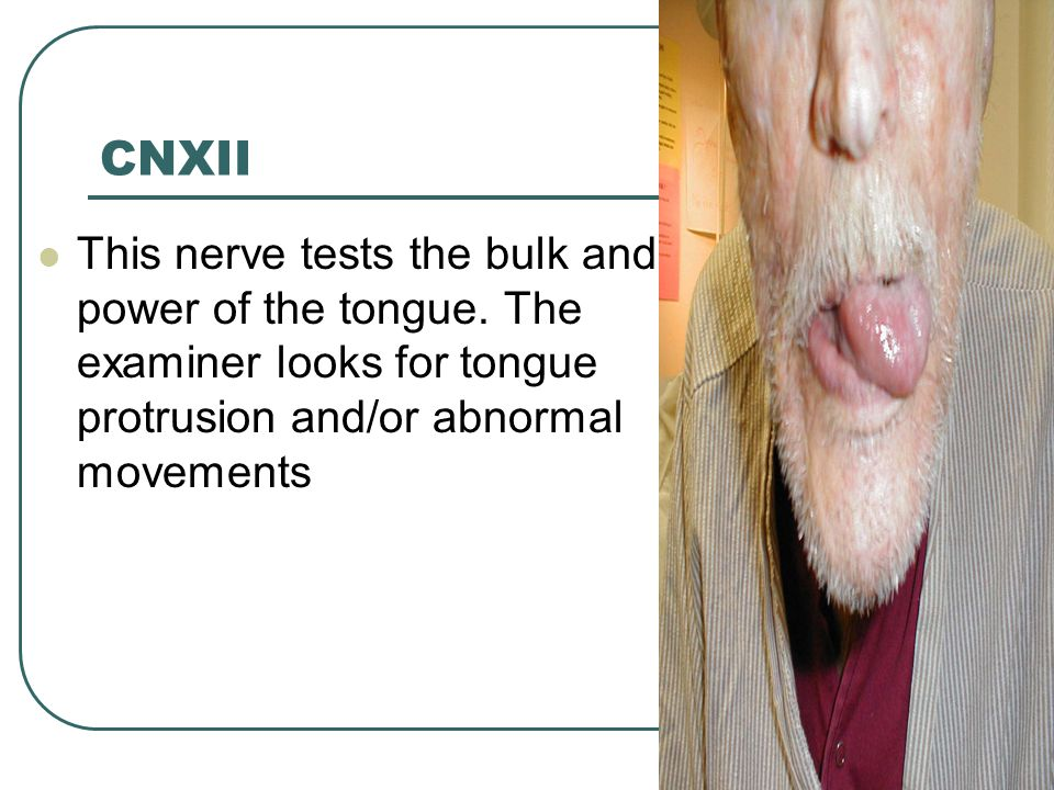 CNXII This nerve tests the bulk and power of the tongue. The examiner looks for tongue protrusion and/or abnormal movements
