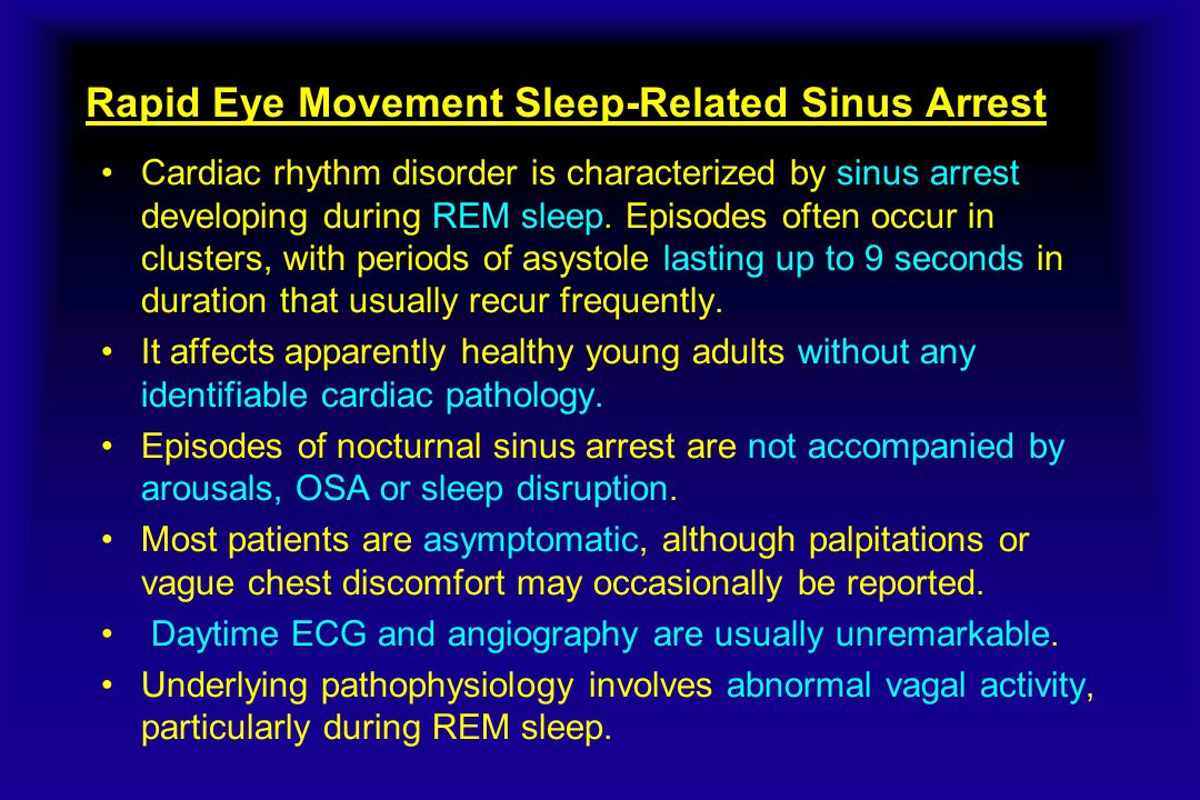 Rapid Eye Movement Sleep-Related Sinus Arrest Cardiac rhythm disorder is characterized by sinus arrest developing during REM sleep.