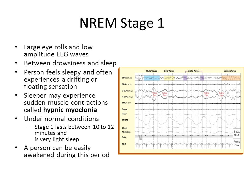 NREM Stage 1 Large eye rolls and low amplitude EEG waves Between drowsiness and sleep Person feels sleepy and often experiences a drifting or floating sensation Sleeper may experience sudden muscle contractions called hypnic myoclonia Under normal conditions – Stage 1 lasts between 10 to 12 minutes and is very light sleep A person can be easily awakened during this period