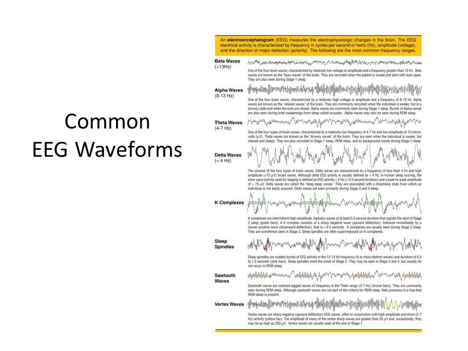 Common EEG Waveforms