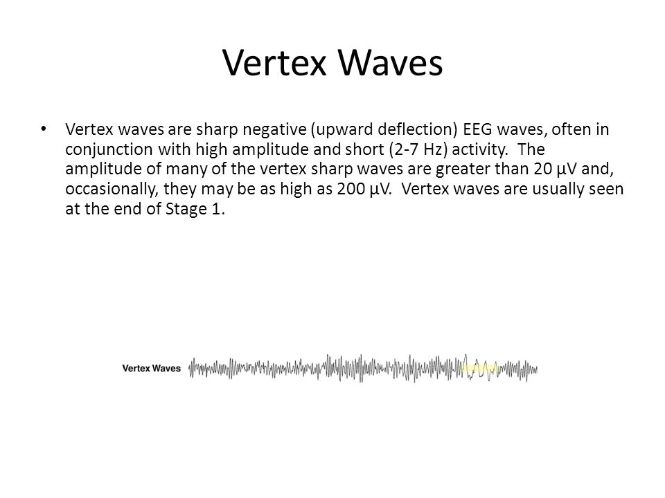 Vertex Waves Vertex waves are sharp negative (upward deflection) EEG waves, often in conjunction with high amplitude and short (2-7 Hz) activity.