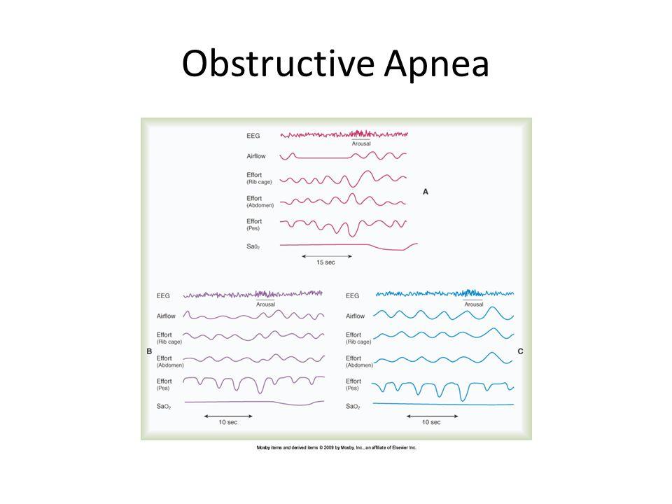 Obstructive Apnea