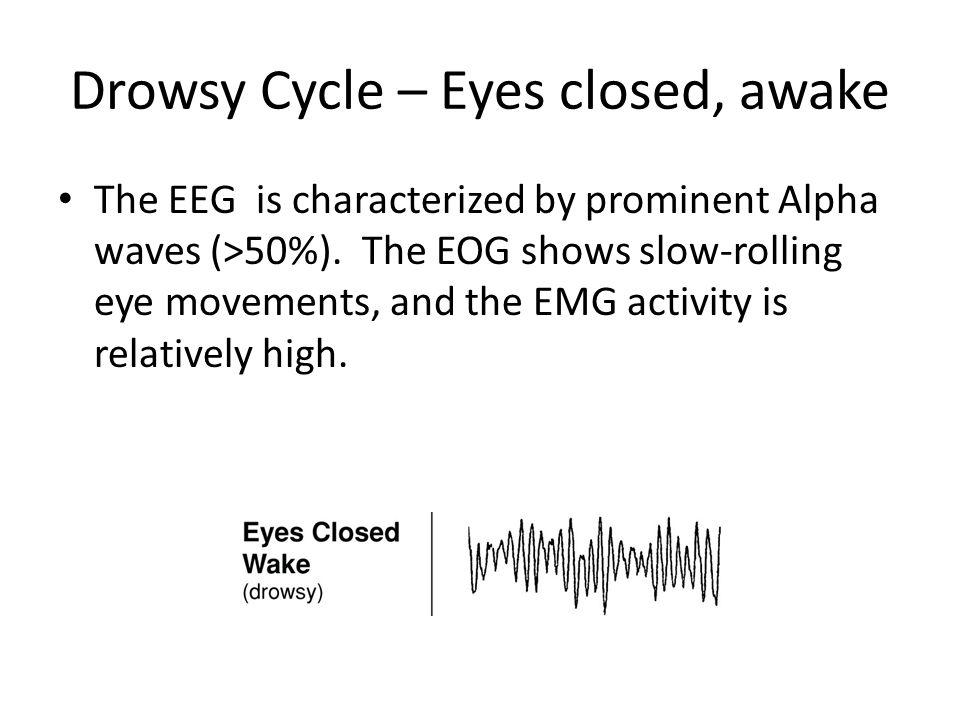 Drowsy Cycle – Eyes closed, awake The EEG is characterized by prominent Alpha waves (>50%).