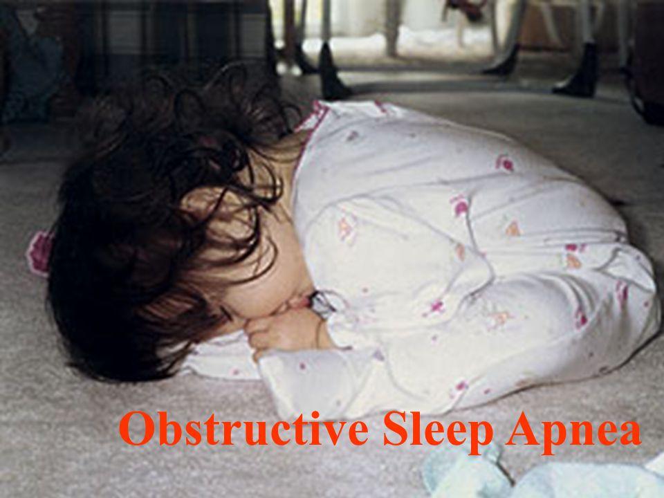 18 Obstructive Sleep Apnea