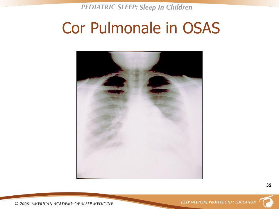 32 Cor Pulmonale in OSAS