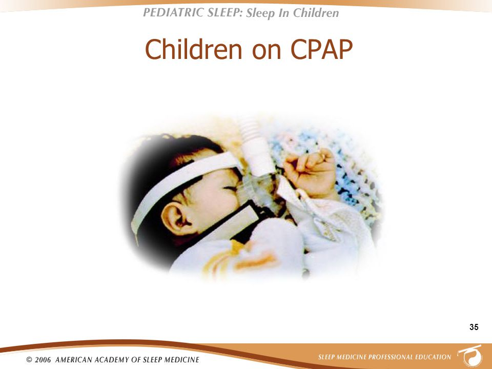 35 Children on CPAP