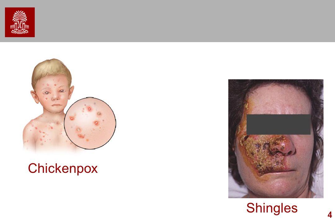 4 Chickenpox Shingles