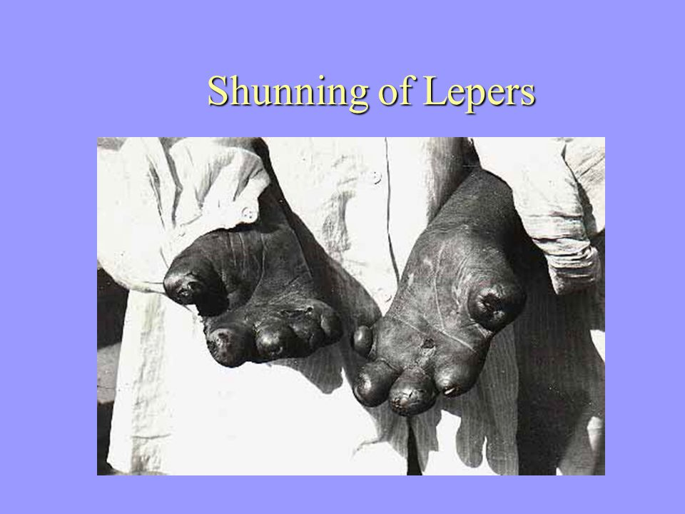Shunning of Lepers