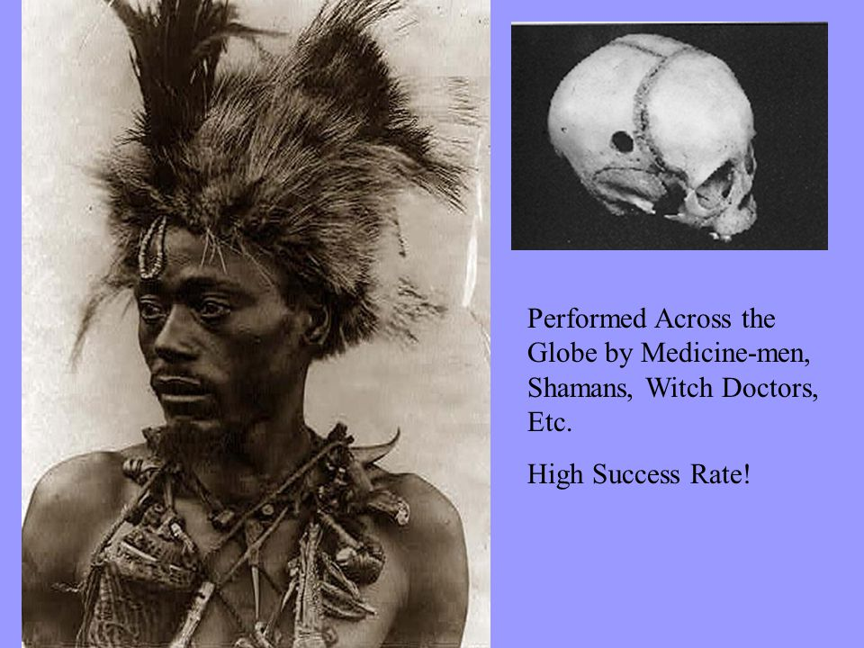 Performed Across the Globe by Medicine-men, Shamans, Witch Doctors, Etc. High Success Rate!