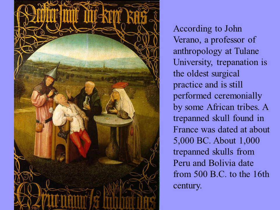 According to John Verano, a professor of anthropology at Tulane University, trepanation is the oldest surgical practice and is still performed ceremonially by some African tribes.