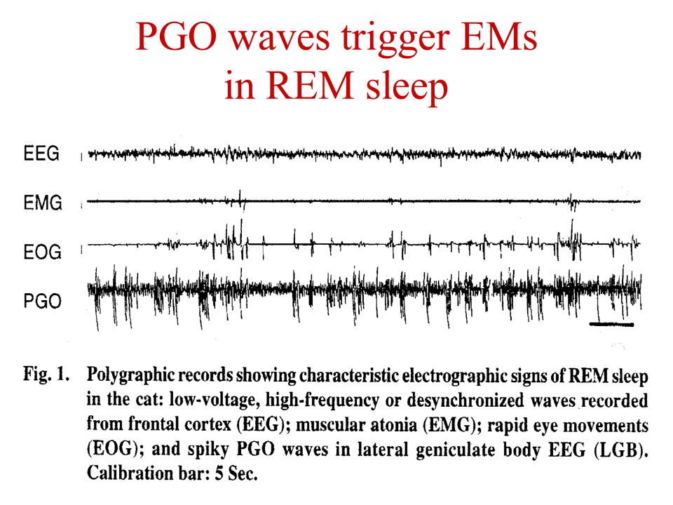 PGO waves trigger EMs in REM sleep