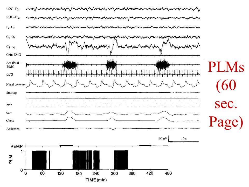 PLMs (60 sec. Page)