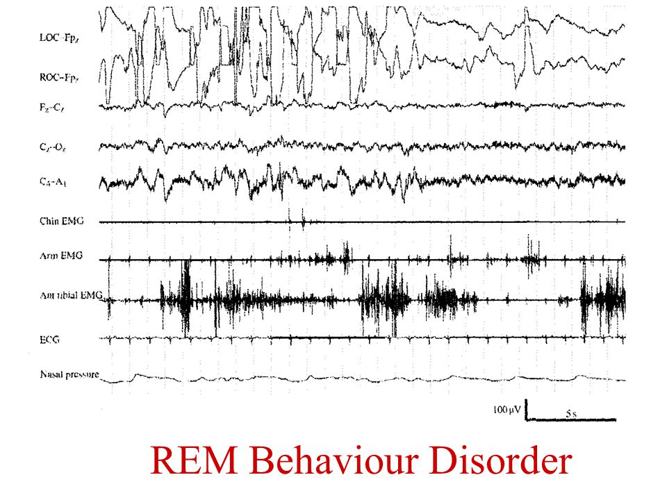 REM Behaviour Disorder