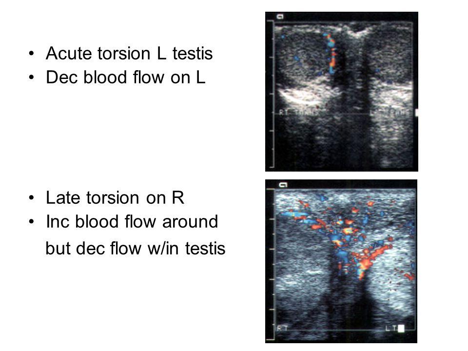 Acute torsion L testis Dec blood flow on L Late torsion on R Inc blood flow around but dec flow w/in testis