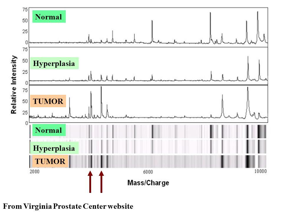 From Virginia Prostate Center website TUMOR Hyperplasia Normal
