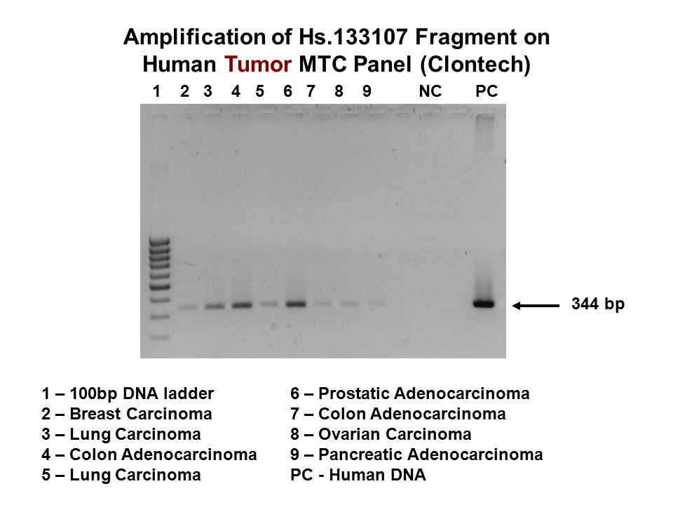 Amplification of Hs.133107 Fragment on Human Tumor MTC Panel (Clontech) 1 2 3 4 5 6 7 8 9 NC PC 344 bp 1 – 100bp DNA ladder 2 – Breast Carcinoma 3 – Lung Carcinoma 4 – Colon Adenocarcinoma 5 – Lung Carcinoma 6 – Prostatic Adenocarcinoma 7 – Colon Adenocarcinoma 8 – Ovarian Carcinoma 9 – Pancreatic Adenocarcinoma PC - Human DNA